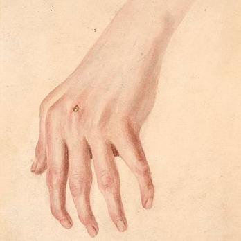 rheuma arthritis icd 10)