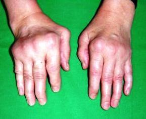 Reumatoid artritisz, az egyik legsúlyosabb mozgásszervi betegség