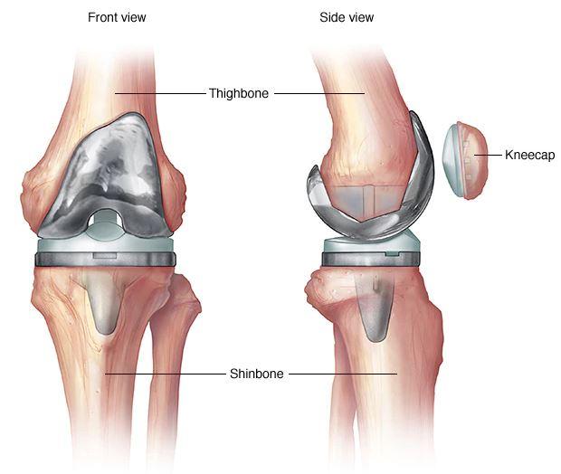 hogyan lehet érzésteleníteni a térd artrózisát)