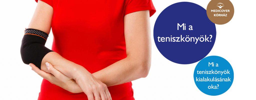 Teniszkönyök kialakulása, tünetei, kezelése - cseszlovak.hu
