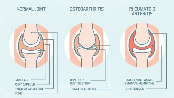 systemic autoimmune disease rheumatoid arthritis)
