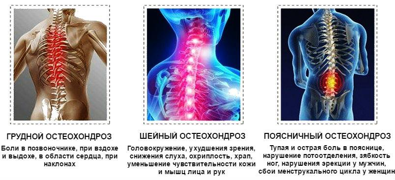 spondylosis osteochondrozis artrózisának kezelése)