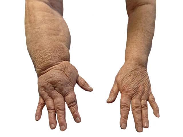 nagy lábujj ízületi fájdalomkezelés hogyan kezeljük a folyadék felhalmozódását a könyökízületben