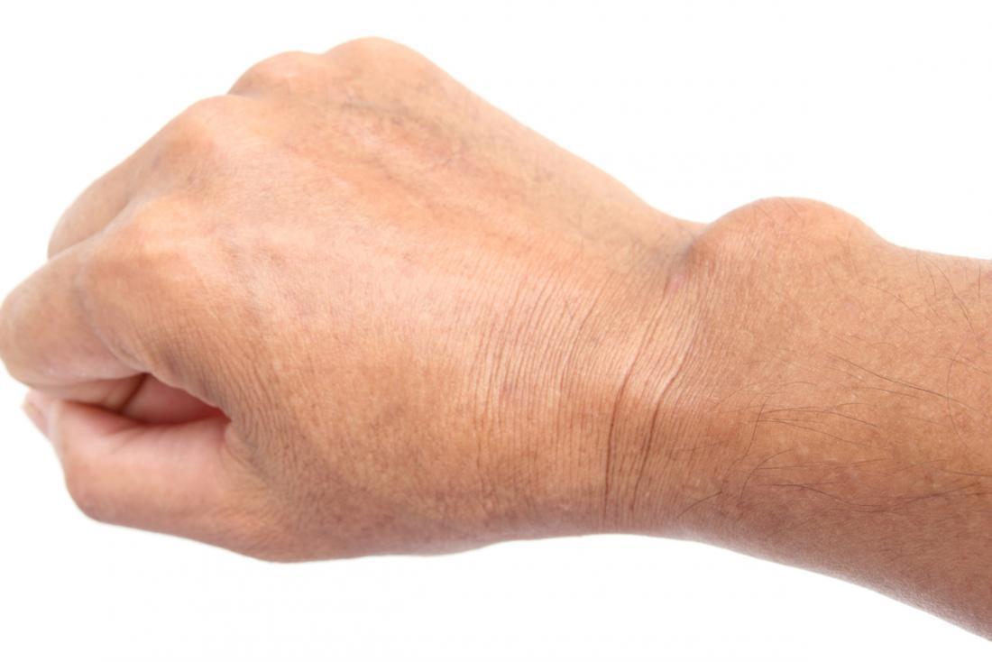 csukló-ín ganglion kezelés a csípőízületek deformáló artrózisa 1-2 fokkal