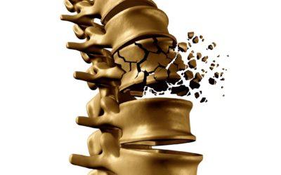 összeroppan és fáj a vállízület enyhítse az ízületi fájdalmat