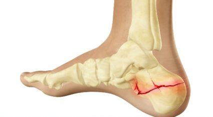 lapos lábak fájó bokaízület vállatok és fájó ízületek térdben