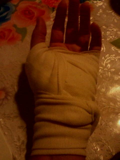a hüvelykujjai nagyon fájnak