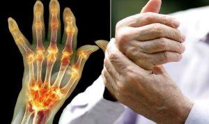 egy hatékony gyógyszer a kéz ízületeiben caripazim és ízületi kezelés