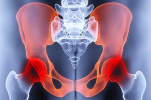 arthropant krém ízületekre a térd tüneteinek pattanása