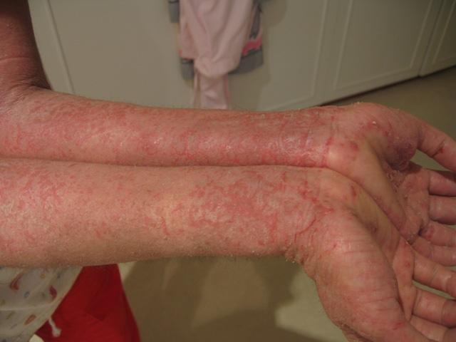 Ekcéma a kézen: egy fájdalmas bőrgyulladás