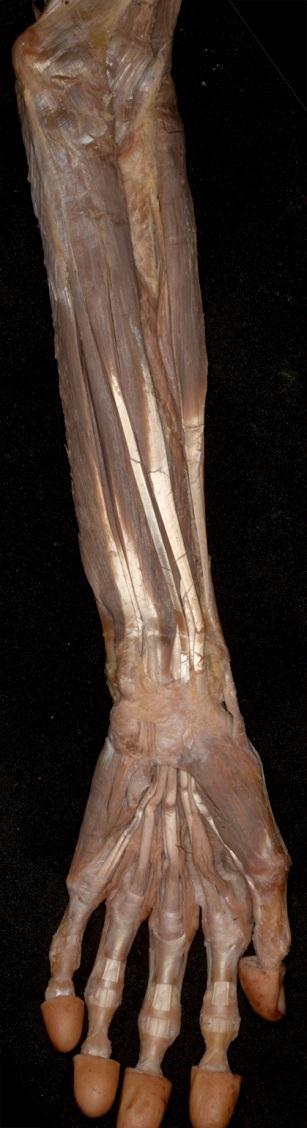 a bal könyökízület artrózisa 1 fok