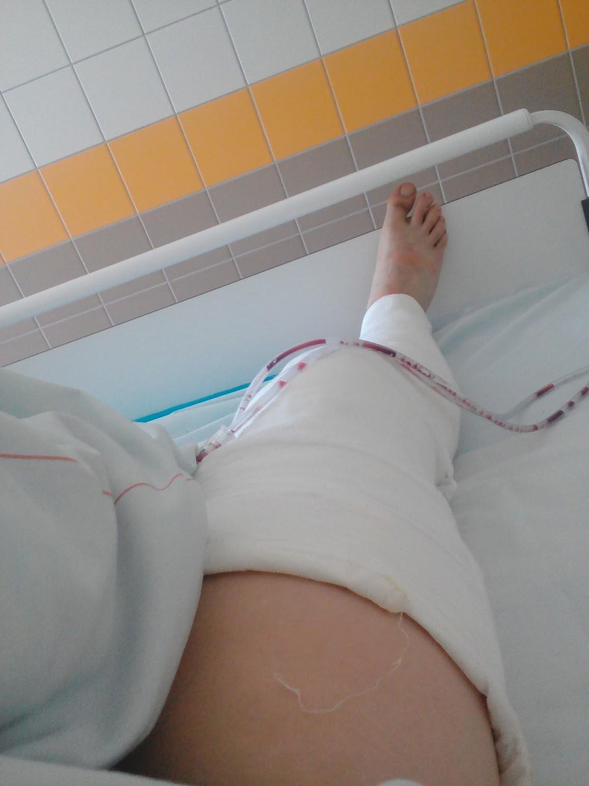 fáj térd sérülés után)