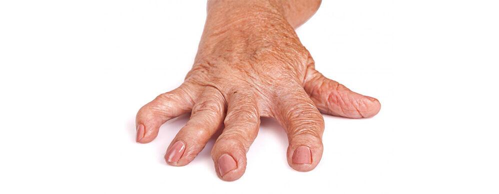 kézízület krém