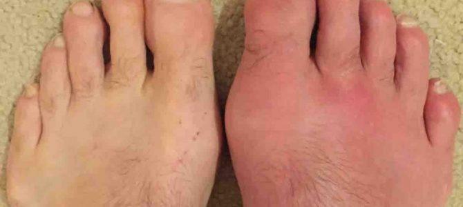 lábfájdalom a láb sarkának ízületében)