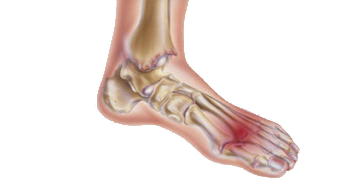 a szalagok és ízületek helyreállításának előkészítése osteoarthritis a csípőízület 2-3 fokos kezelése