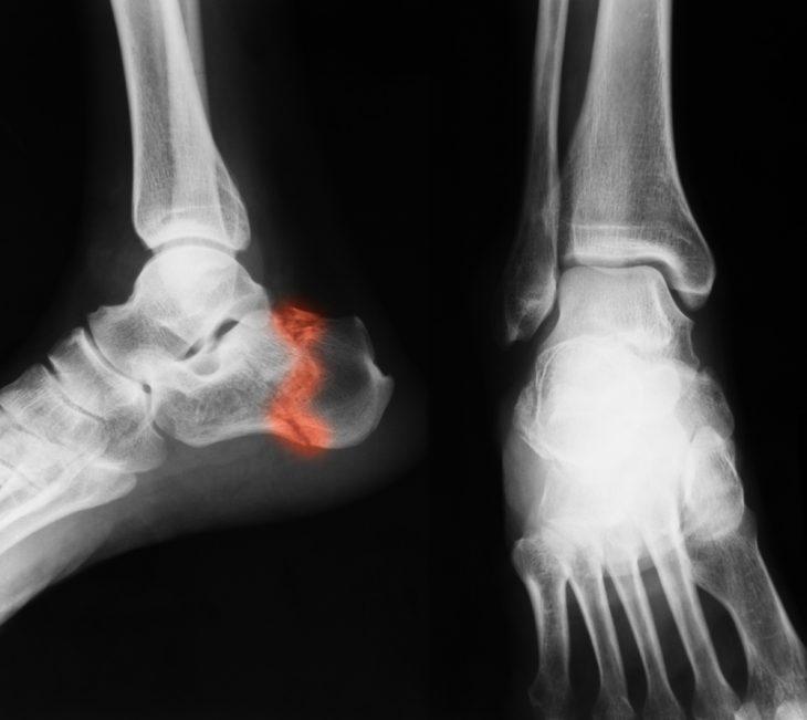 ízületek törése törés után artrózisos hőkezelés