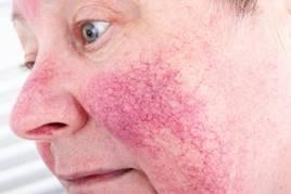 az úgynevezett kötőszövet bőrbetegsége