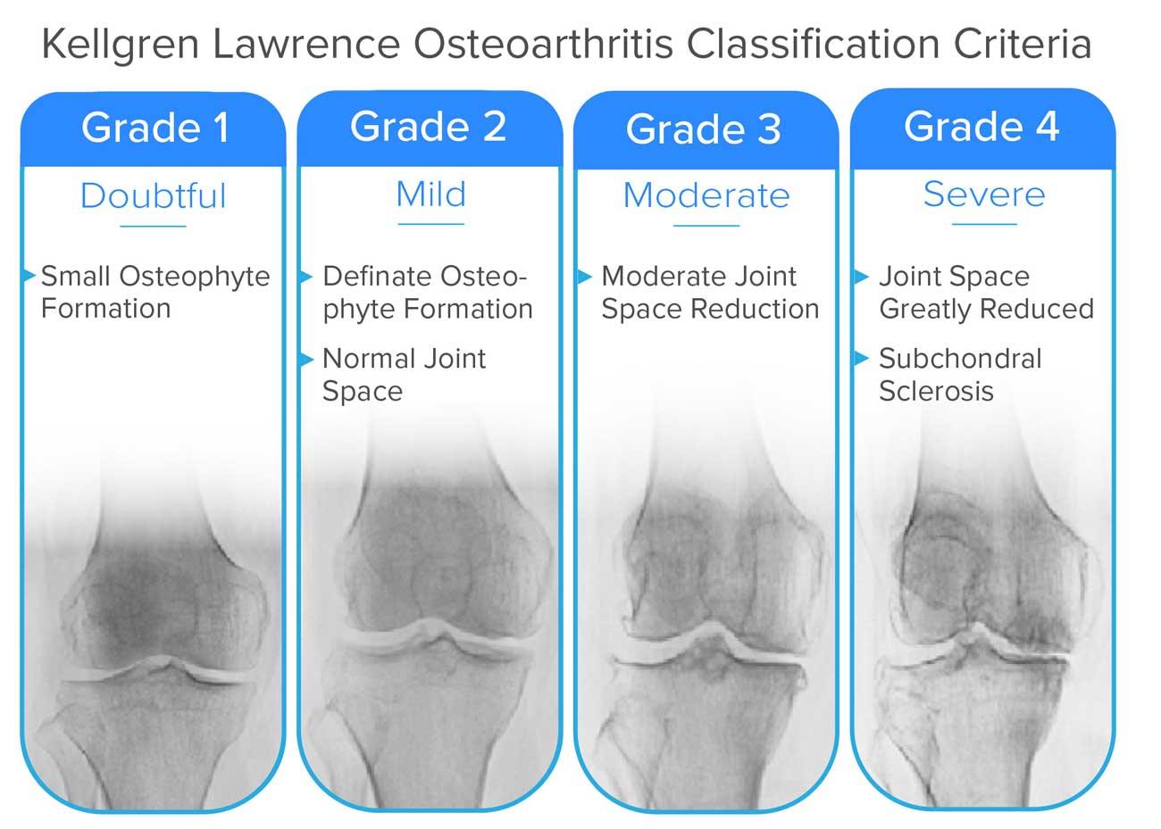 osteoarthritis radiology grading