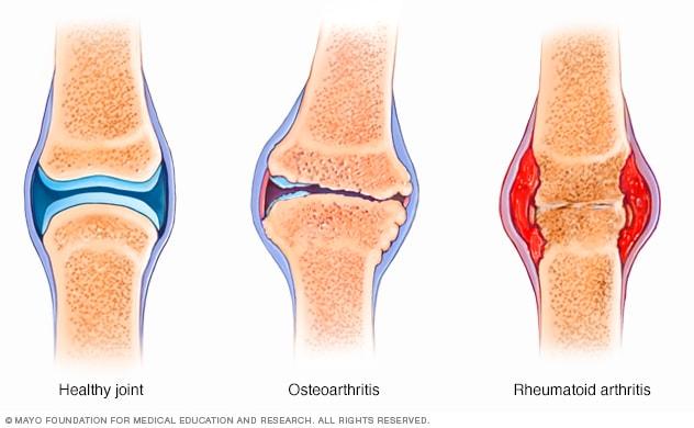 arthroso arthritis lábujjak