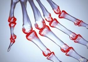 Okai, tünetei és az ujjlenyomat poliartritisz hatékony kezelése