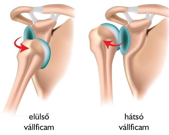 A csípő-keresztcsonti ízület gyulladása (sacroileitis) - Csípő csontvelő ödéma szindróma