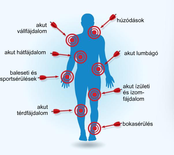 rángatózó és fájó ízületi fájdalmak joint gel p.c 28 vivasan svájc