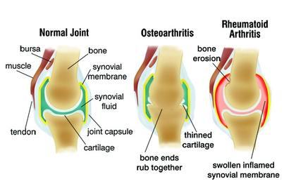 a térd artrózisának vizsgálata)