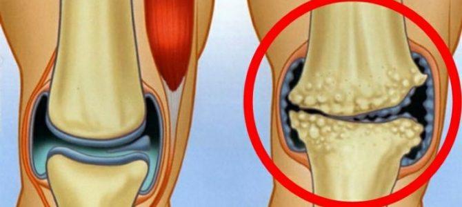 a láb artrózisa és hogyan lehet kezelni)
