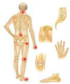 arthrosis tb ízületi kezelés milyen kezelésre van szükség az ízületek ízületi gyulladásában
