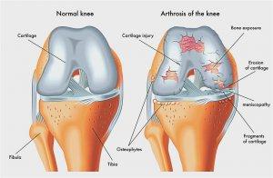 fórum a kéz arthrosisának kezelésére