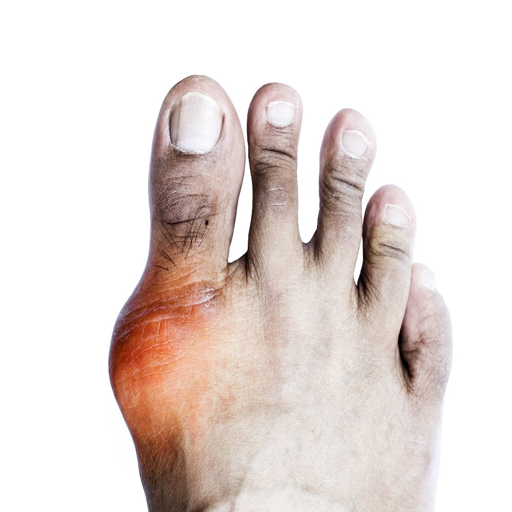 az 1. fokú ujjak ízületeinek ízületi gyulladása)
