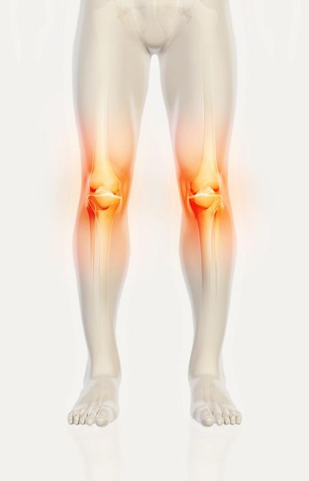 lézeres kezelés térdízületi artrózisról hogyan lehet kezelni a gyulladásos ízületeket