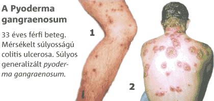 ízületi fájdalom és crohn-kór