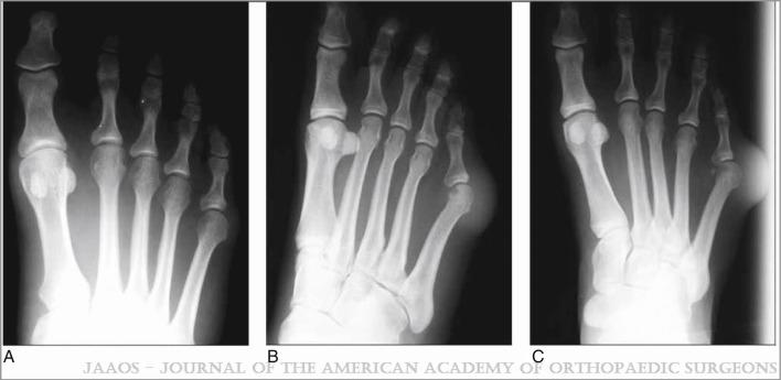 osteoarthritis 1st mtp joint icd 10)