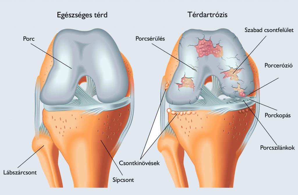 a térd artrózisa 3 fok