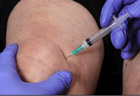 gyógyszer a csípőízület idegének becsípésére ízületi fájdalom a hormonhiány miatt