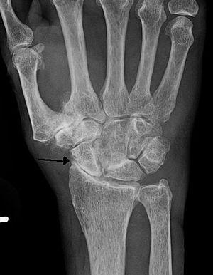 carpal artrosis)