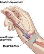 a kéz könyökgyulladása