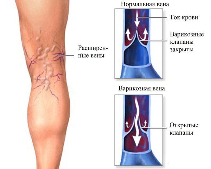 ideggyulladás lábát tünetek és kezelési módszerek