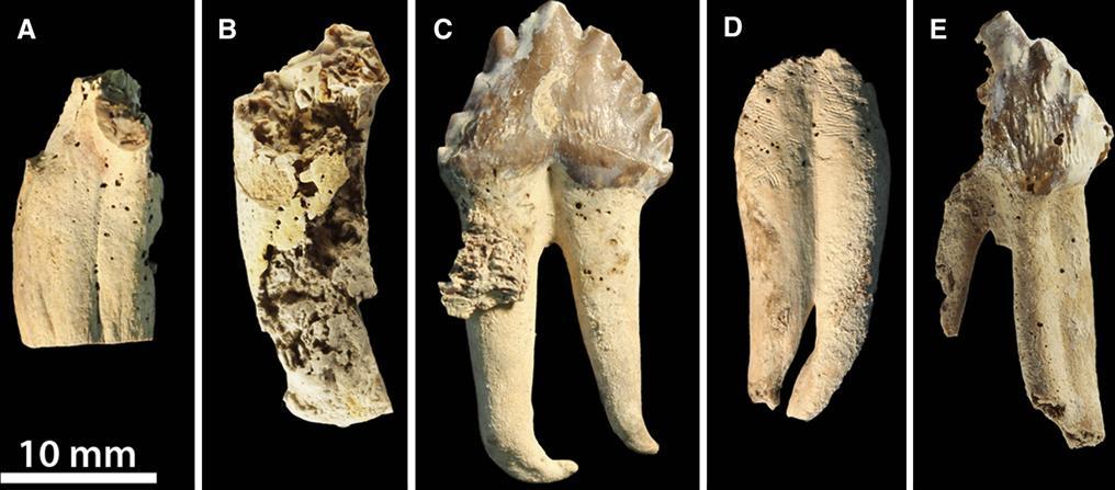kenőcsék brachialis osteochondrosishoz)