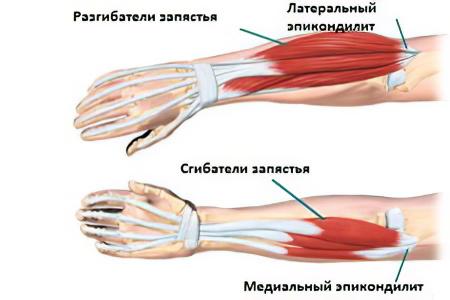 a könyökízület deformáló osteoarthrosisának 1 fokos kezelése