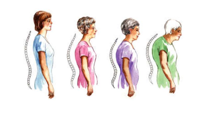 csontritkulás és ízületi fájdalmak kezelése