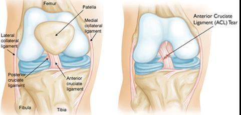 a térd tünetek fokának artrózisának kezelése