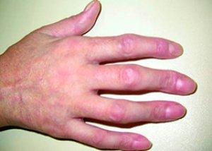 A szisztémás lupus erythematosus diagnosztikája