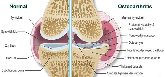 minden ízület osteoarthritis, mint kezelésére