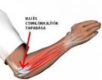 Teniszkönyök (Epicondylitis lateralis Humeri)