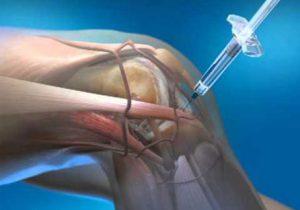 intraartikuláris injekció artrózis kezelésére