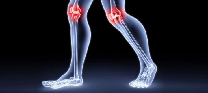 A legfontosabb tudnivalók a lágyrész-fájdalmakról