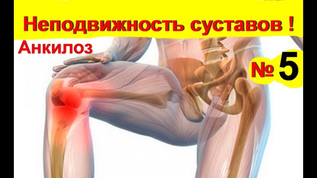 a bokaízület deformáló artrózisának okai)