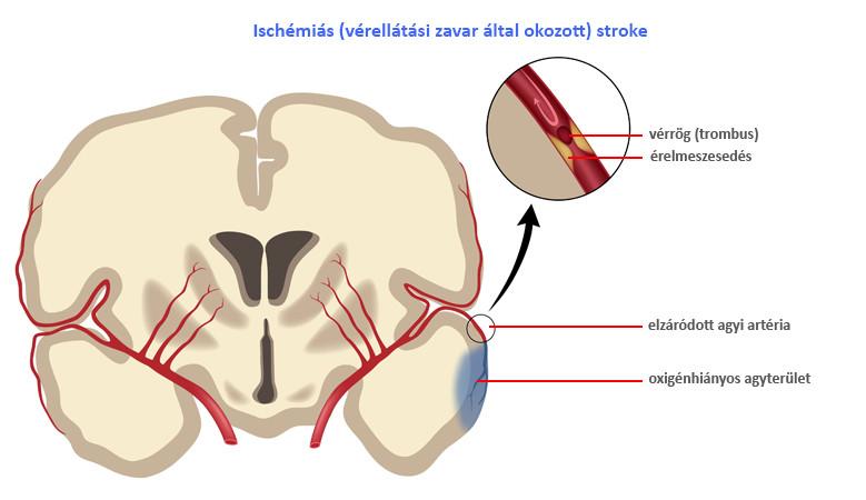agyi ízületi kezelés